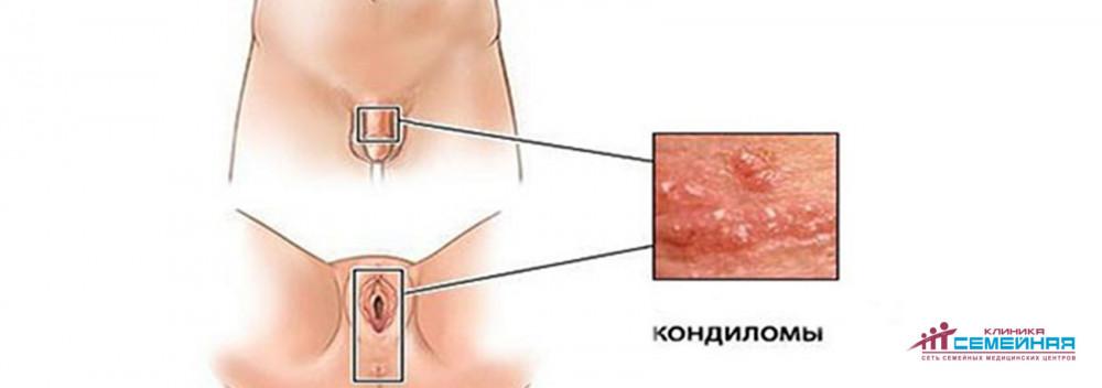 simptom condilom hpv induced throat cancer